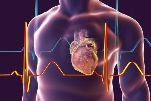 Everything You Need To Know About Mitral Valve Stenosis